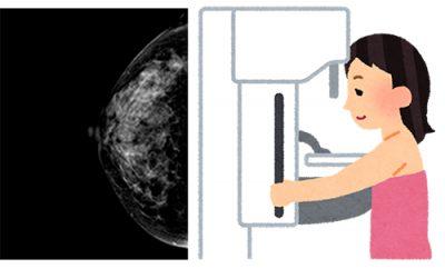 乳がんの検査(マンモグラフィ)